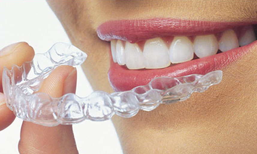 Clear Aligners - Dr. Phil Shay, D.D.S. M.S. - Shay Dental ...